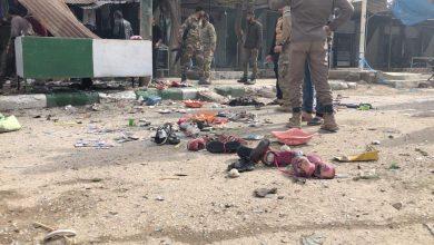 صورة جريح بانفجار عبوتين ناسفتين في مدينة رأس العين بالحسكة
