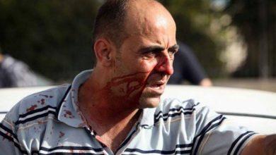 """صورة التقرير الطبي يظهر نتيجة مقتل الناشط الفلسطيني """"نزار بنات"""""""